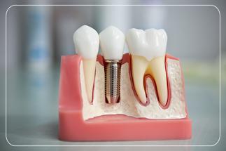 İstanbul dental implant