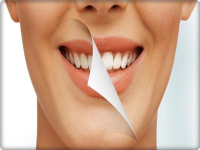 İstanbul diş beyazlatma fiyatları