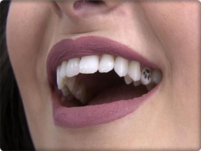 Diş dövmesi zararlı mıdır?