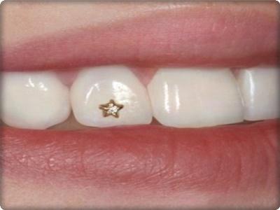 Diş dövmesi nasıl yapılır?