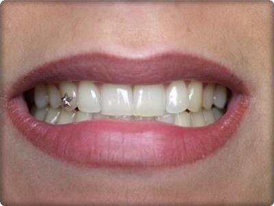 Pırlanta diş Kaplama Fiyatları
