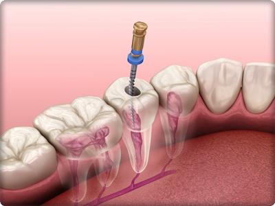 On diş kanal tedavisi