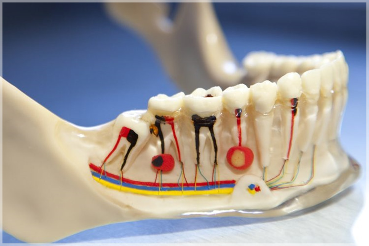Endodonti - Kanal Tedavisi