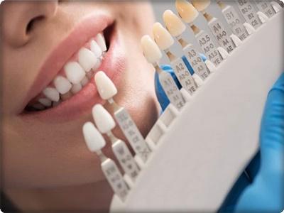 Estetik diş dolgusu ne kadar?