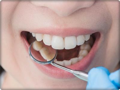 Estetik diş dolgu nedir?