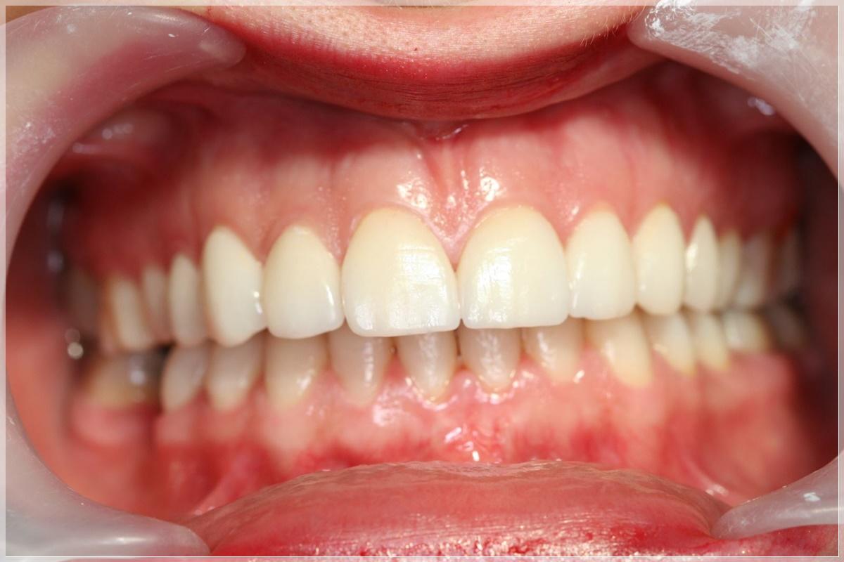 Estetik diş dolgusu