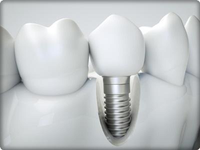 Diş implant nedir