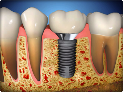 Diş implant