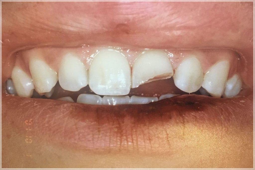 Ön dişlere yapılan estetik dolgu