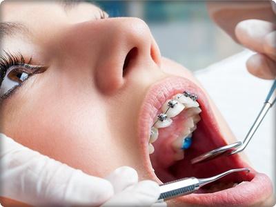 En kısa ortodonti tedavisi