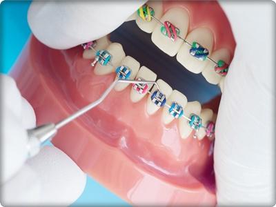 Ortodonti ne demek