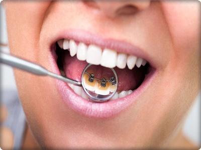 Ortodonti İstanbul
