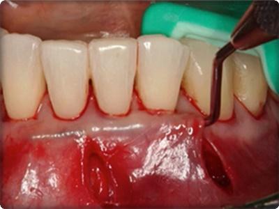 Periodontal plastik cerrahi