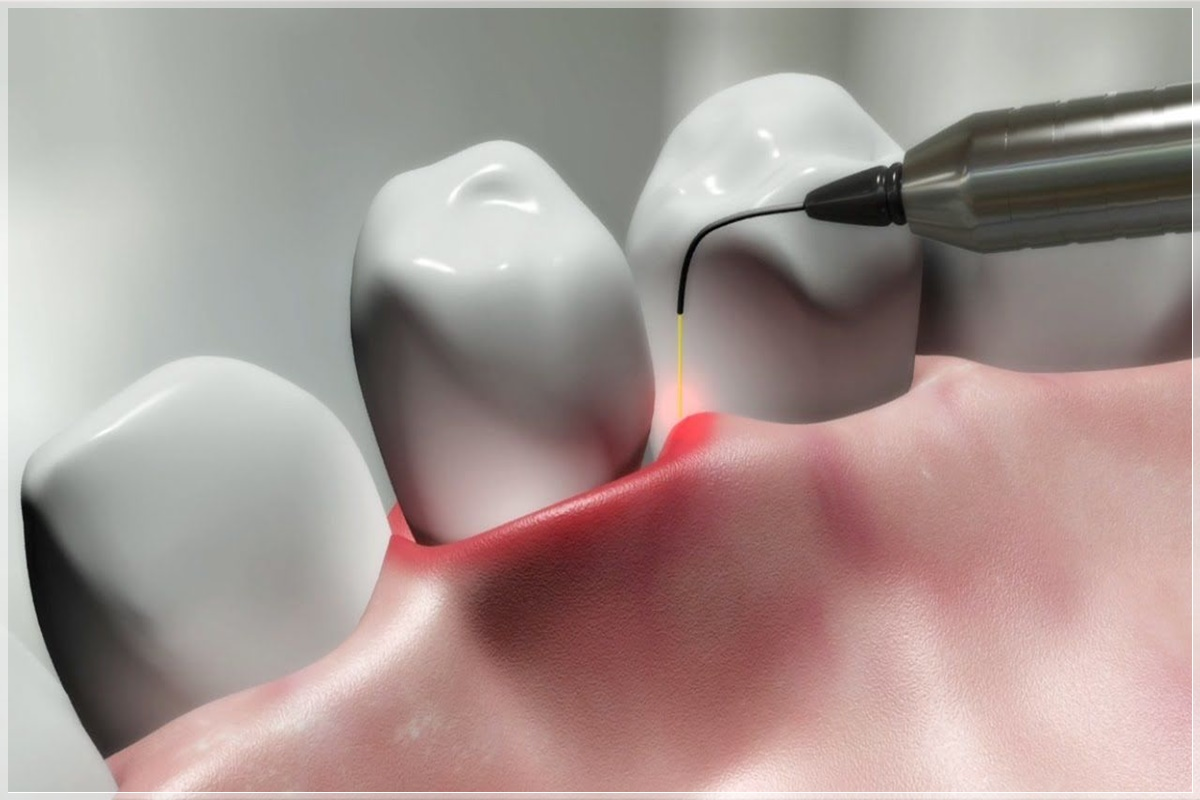 Plastik periodontal tedavi