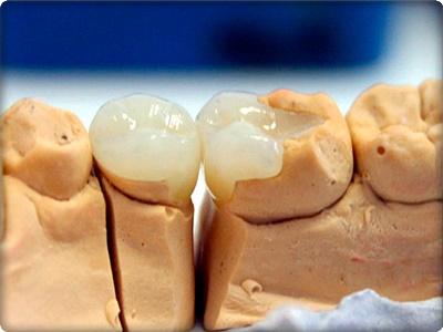 Ön diş porselen dolgu