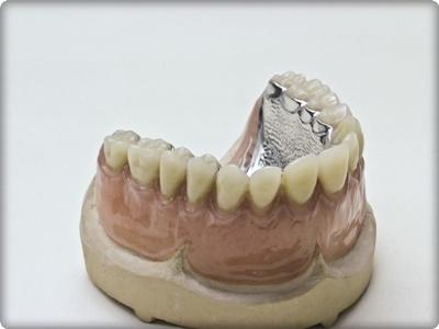 Protez dişlerin ömrü ne kadardır?