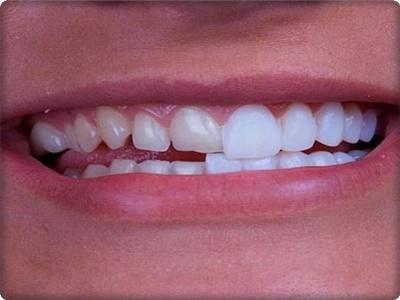 Zirkonyum diş kırılır mı?