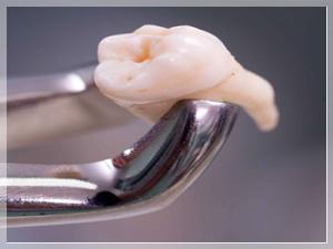 20 yaş diş çekimi sonrası ne yenmeli?