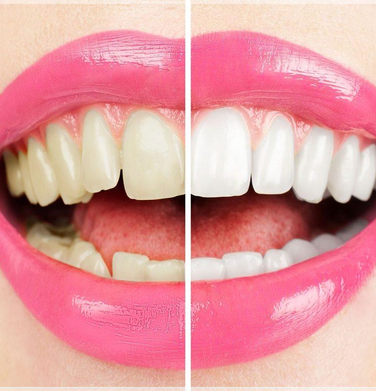 İstanbul diş beyazlatma