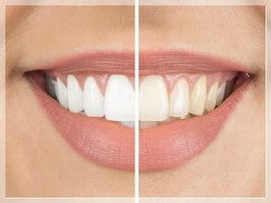 Diş beyazlatma Fiyatları 2021
