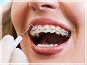 Diş estetiği Fiyatları 2021