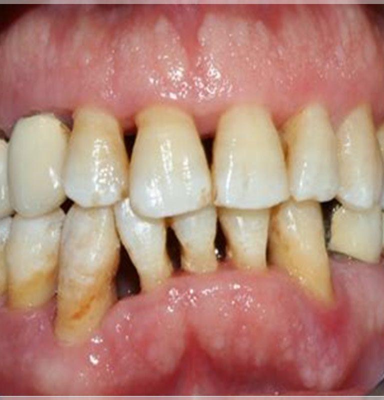 Diş eti çekilmesi neden olur?