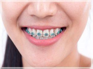 Diş teli taktırmak ne kadar 2021?