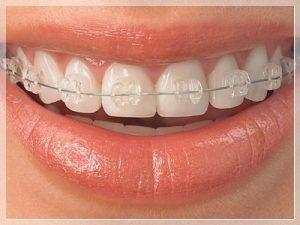 Şeffaf diş teli Fiyatları