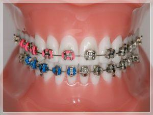 Diş teli taktırmak kaç TL?