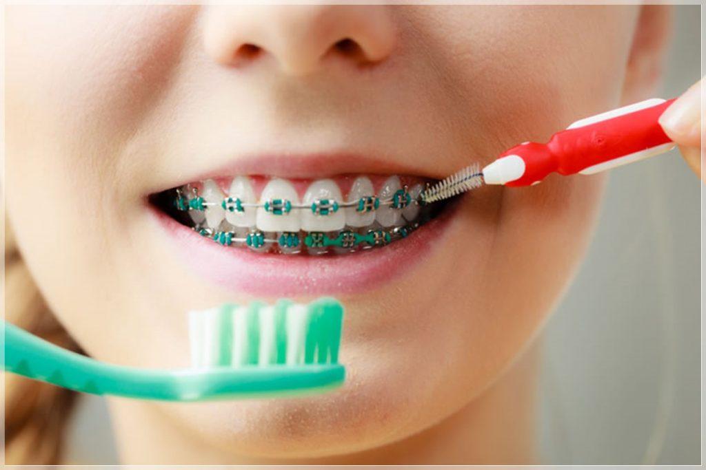 Diş teli tedavisi nasıl yapılır?