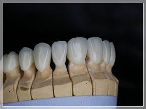 Emax diş ömrü