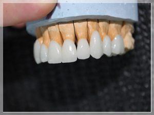 Emax diş Kaplama Fiyatları 2021