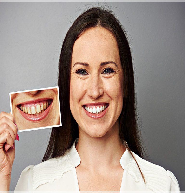 Gülüş tasarımı nasıl yapılır