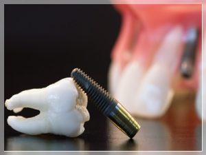Tek diş implant fiyatı ne kadar?