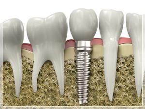 Ortopedik implant nedir