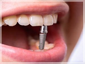 Diş implant Fiyatları 2021