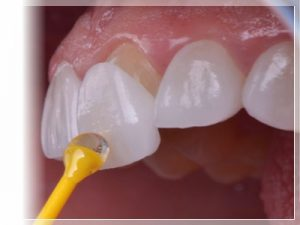 Lamine diş fiyatları ne kadar?