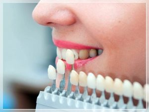 Lamine diş fiyatları 2021