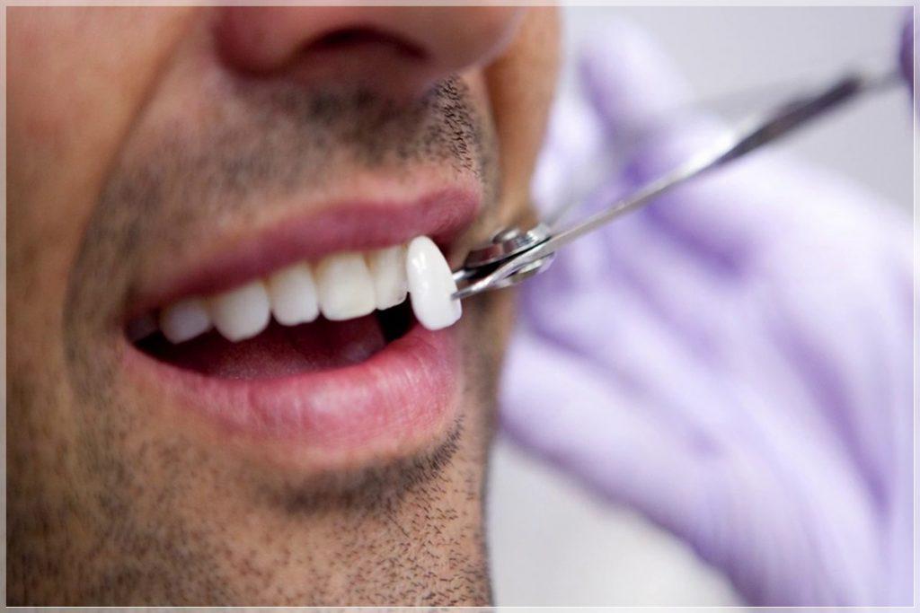 Lamina diş tedavisi nedir