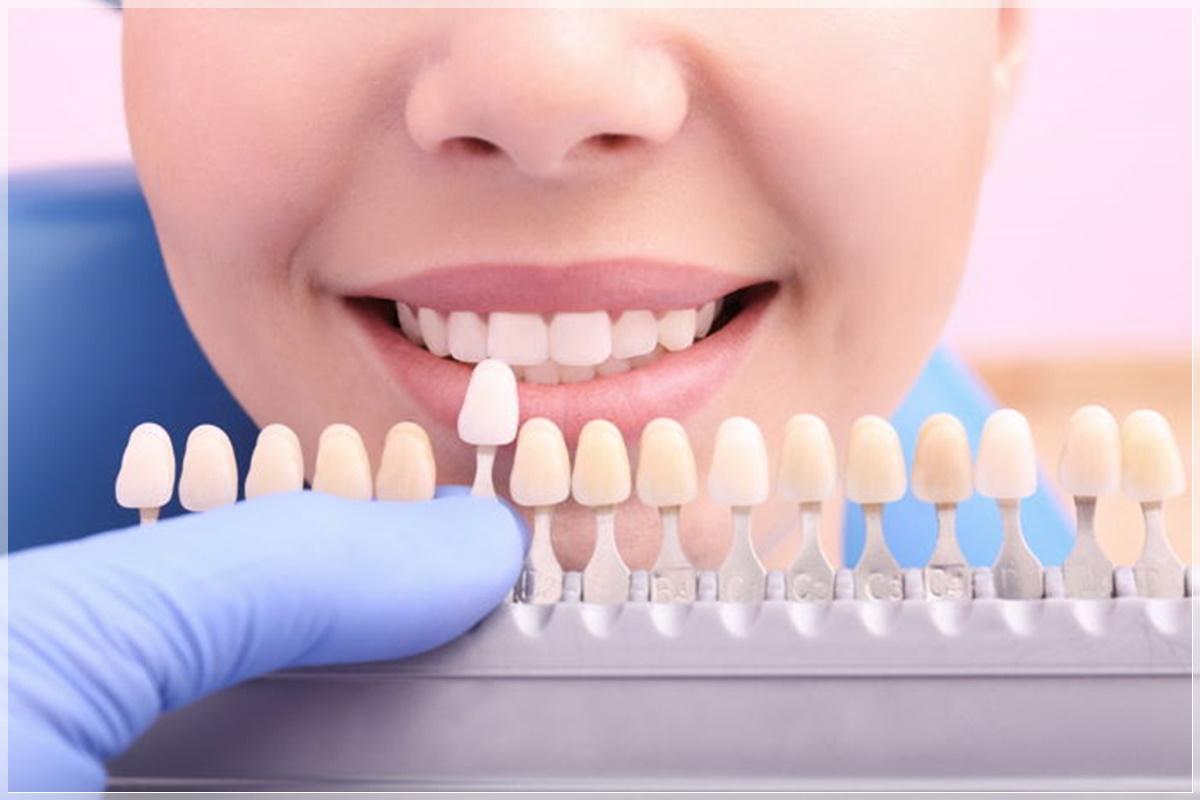 Porselen diş fiyatları