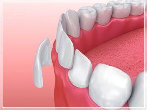 Porselen diş neden yapılır?