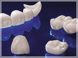 Tek diş kaplaması nasıl yapılır?