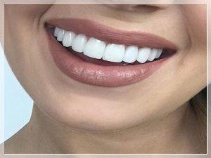 Porselen Diş Fiyatları ne kadar?