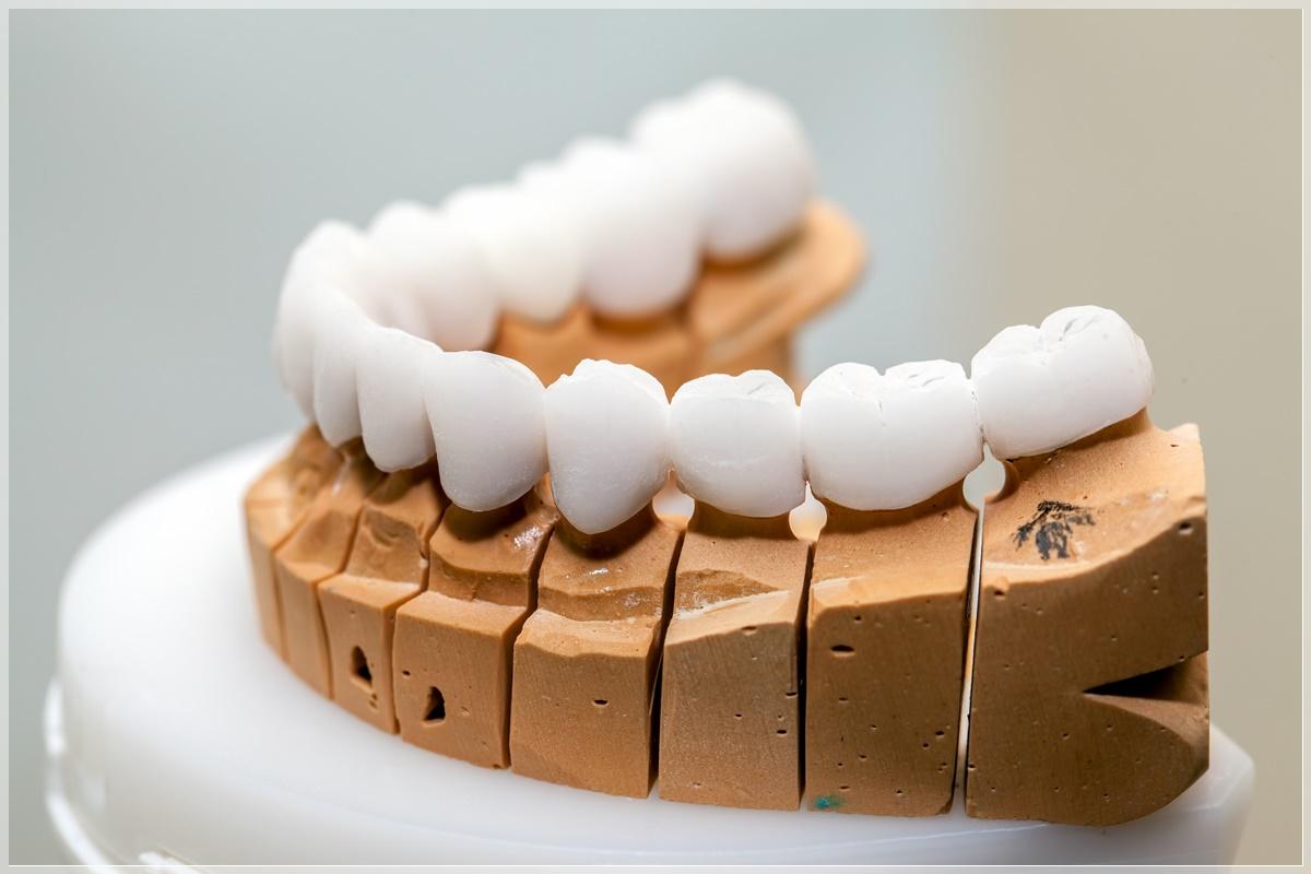 Porselen diş nasıl yapılır