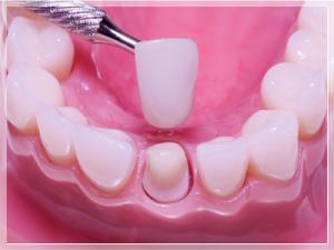 Porselen diş fiyat