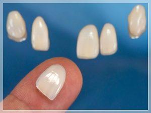 Seramik diş ile porselen diş arasındaki fark