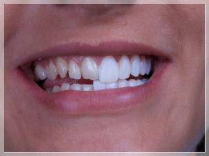 porselen diş