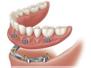 Protez porselen diş fiyatları