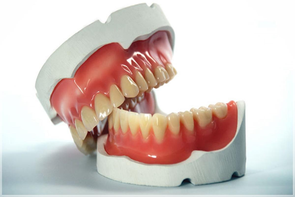 Protez diş çeşitleri ve tedavisi
