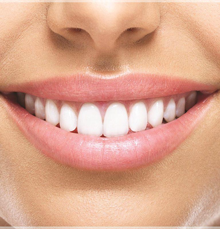 Zirkonyum diş nedir